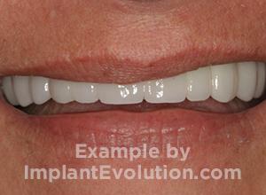 procedure after image Dental Bridges