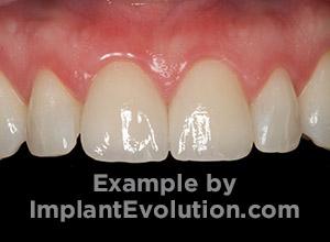 procedure after image Dental Crowns