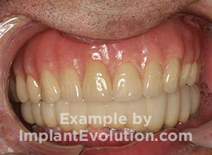 procedure after image Dentures