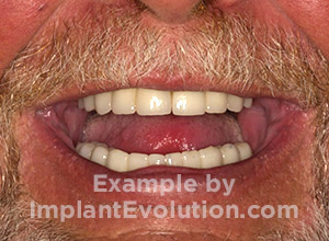 procedure after image Full Mouth Implants