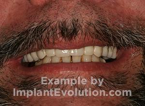 procedure after image Overdentures