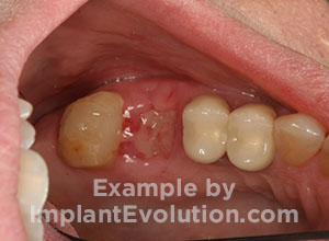 procedure after image Tooth Extractions