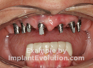 procedure before image Dental Bridges