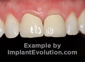 procedure before image Dental Crowns