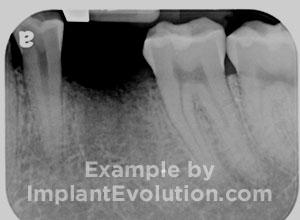 procedure before image Dental Implants