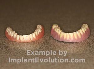 procedure before image Dentures