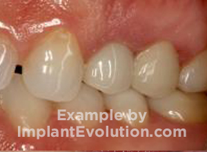 procedure before image Screw Retained Crowns