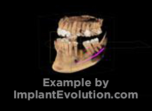 procedure before image Single Posterior Implant