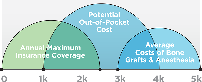Bottom Line Dental Implant Costs