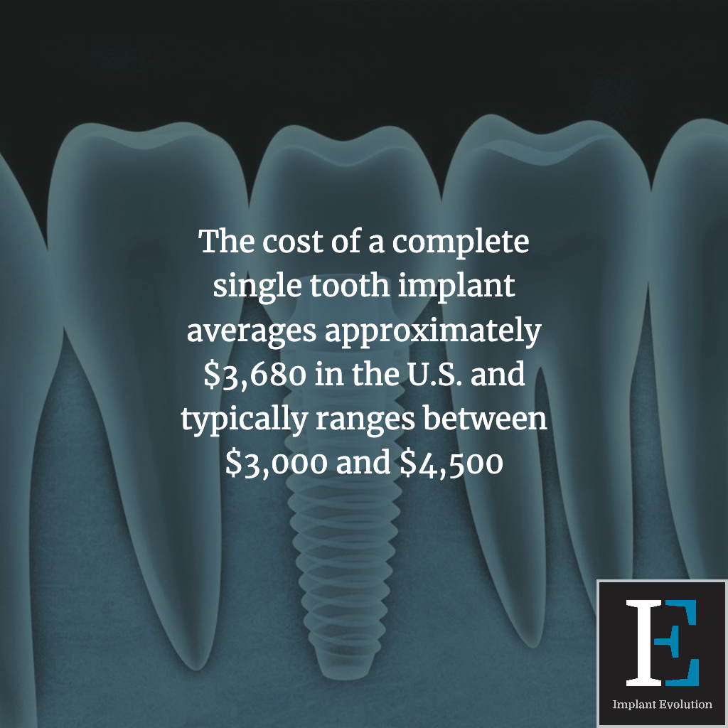 The cost of a complete single tooth implant averages to $3,680.