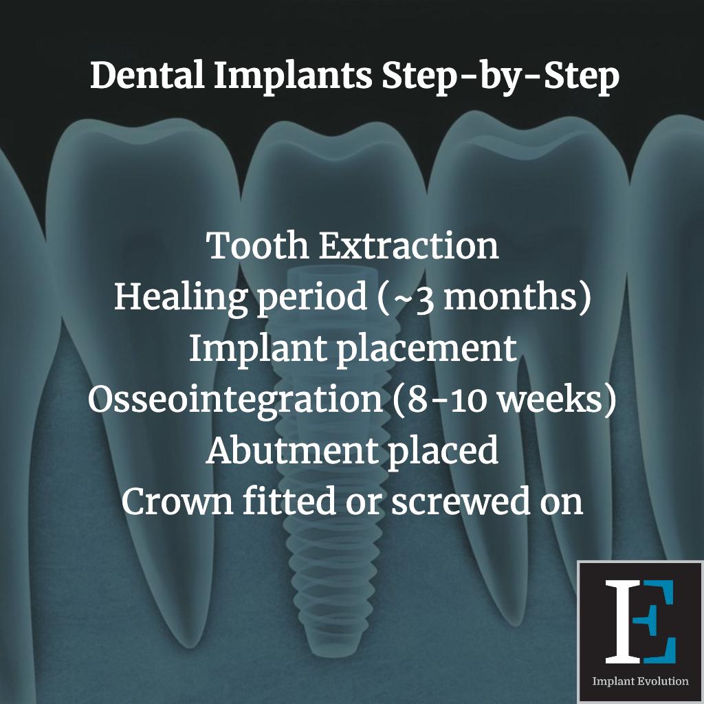 Dental implant step by step